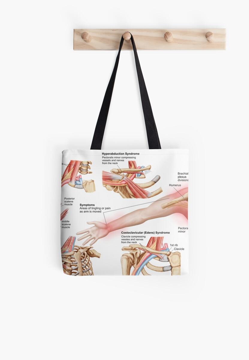 Bolsas de tela «Ilustración médica que detalla el síndrome de salida ...