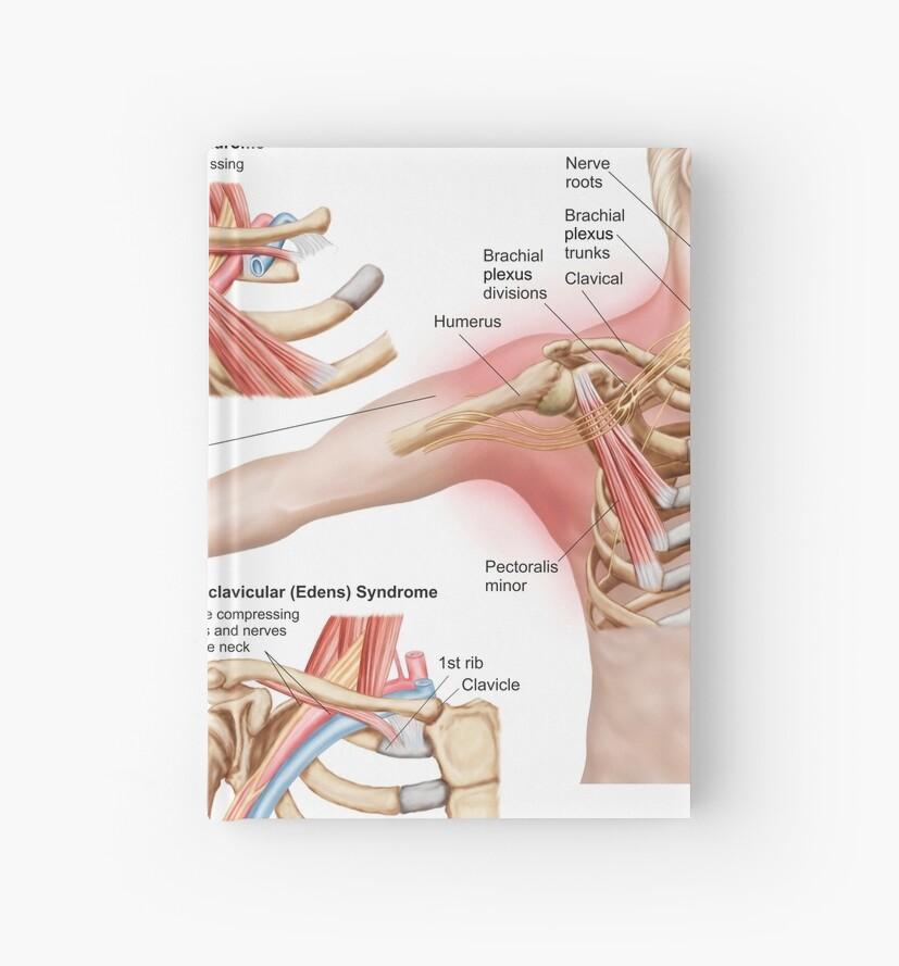Cuadernos de tapa dura «Ilustración médica que detalla el síndrome ...