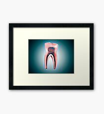Cross-section of a human tooth. Framed Print