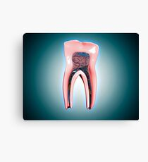 Cross-section of a human tooth. Canvas Print
