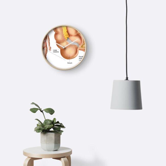Relojes «Ilustración médica de un apéndice con apendicitis» de ...