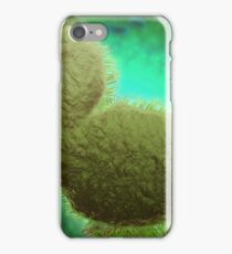 Microscopic view of respiratory syncytial virus. iPhone Case/Skin