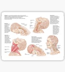Medical chart showing the range of injuries to the human neck caused by whiplash. Sticker