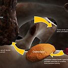 Conceptual image illustrating the process of bone metastasis. by StocktrekImages
