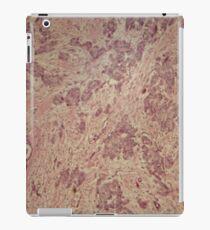 Breast cancer under the microscope iPad Case/Skin