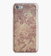Cells of human breast tissue with cancer cells under the microscope iPhone Case/Skin