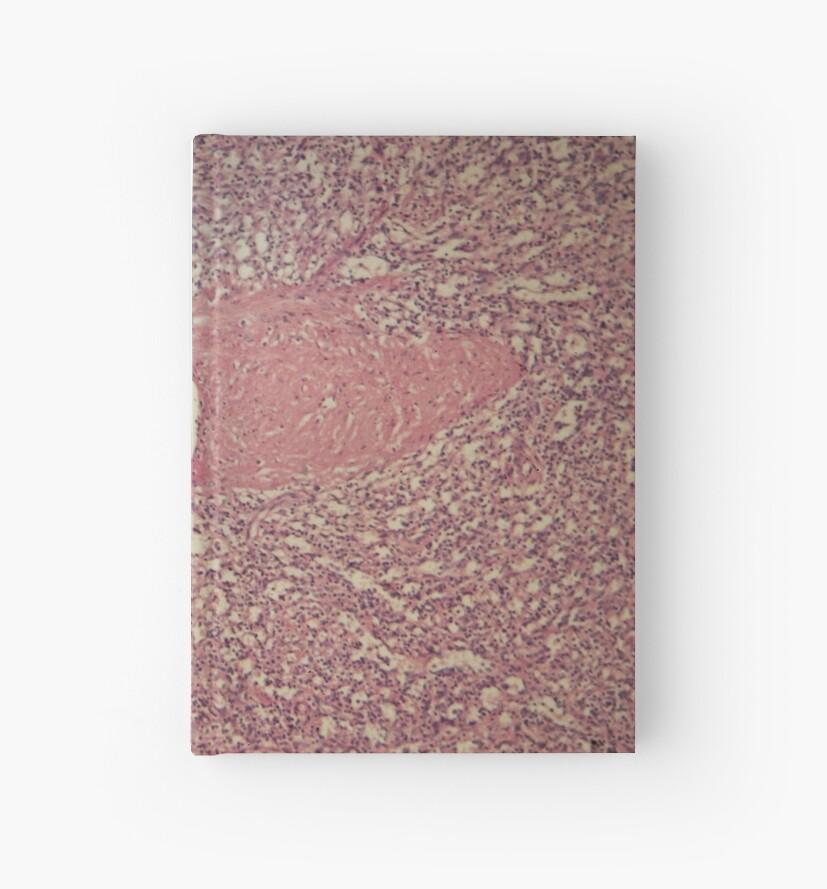 Cuadernos de tapa dura «Las células de un bazo humano con leucemia ...