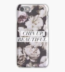 Chin Up, Beautiful Roses iPhone Case/Skin
