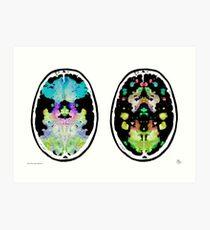 Rorschach inkblot fMRI Scan 2f Inverted Art Print