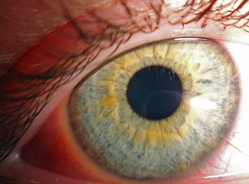Blue eye, lightning ring by tzero