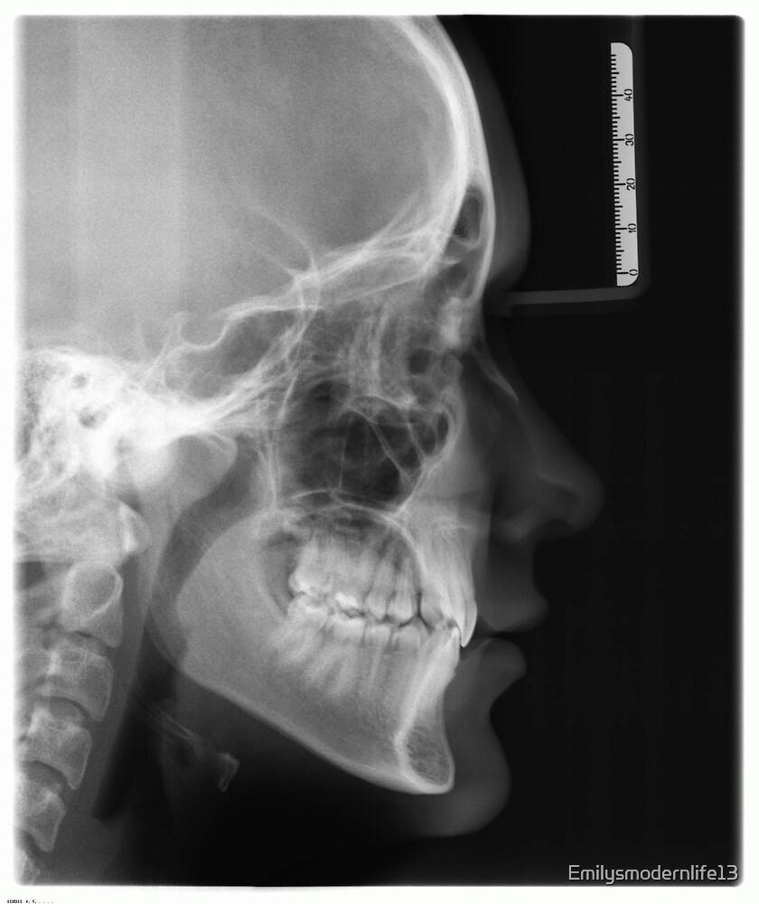 Skull by Emilysmodernlife13