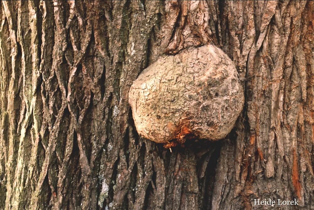 Tree Cancer by Heide  Lorek