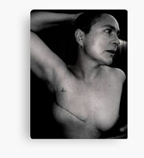 breast cancer - stage 3. Canvas Print