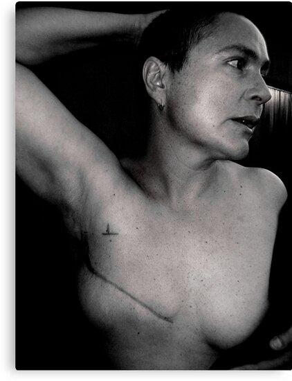 breast cancer - stage 3. by Gideon du Preez Swart