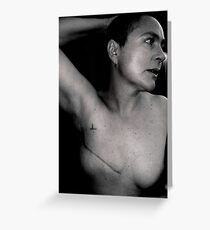 breast cancer - stage 3. Greeting Card