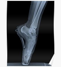 x-ray of a ballet dancer standing on pointe  Poster