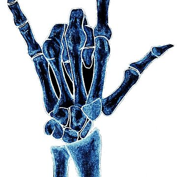 X-ray by iamkart