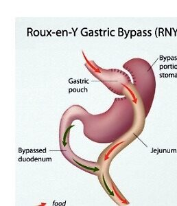 Gastric Bypass Surgery: Advantages, Disadvantages, Qualifications by Surgery-Guide