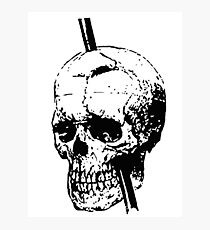 The Skull of Phineas Gage Vintage Illustration Vector Photographic Print