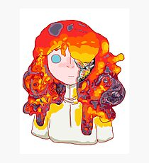 Burning Girl Photographic Print