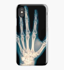x-ray of wrist, hand and fingers iPhone Case