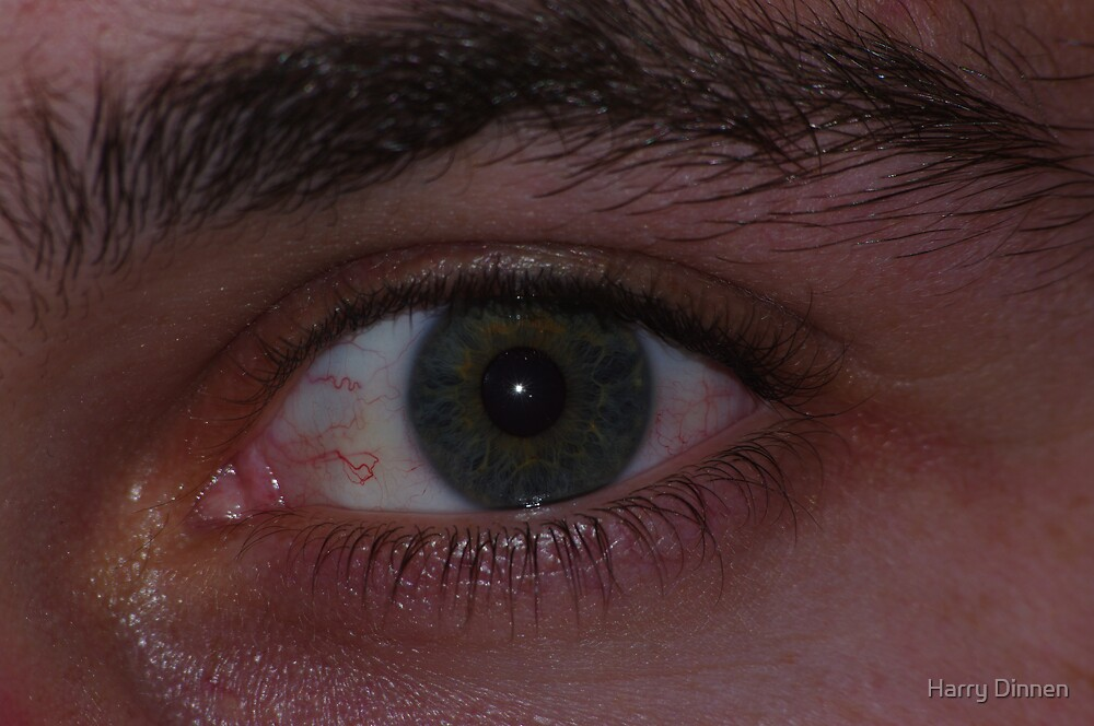 Eye by Harry Dinnen