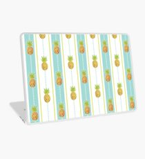 Glitter Tropical Pineapple with Stripes and Dots Laptop Skin