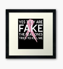 Yes They Are Fake The Real Ones Tried To Kill Me T-Shirt Framed Print