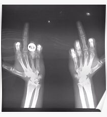 x-ray middle finger Poster