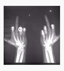 x-ray middle finger Photographic Print