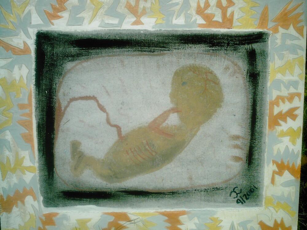 Fetus by Jackie Morgan