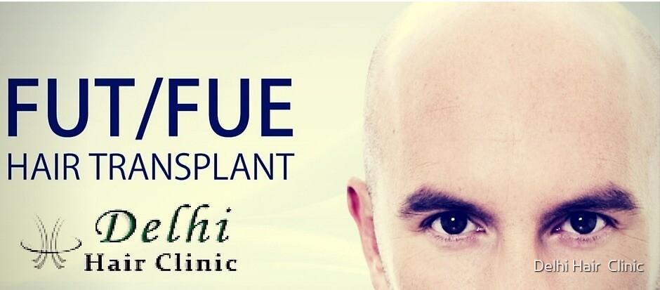 Hair Transplant in Bathinda Punjab at Cheap Cost by Delhi Hair  Clinic