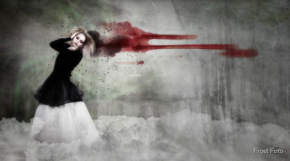 Headache by Line Svendsen