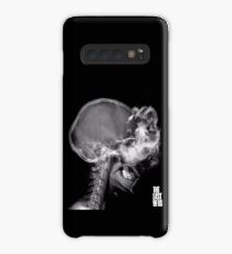 Infected X-Ray Case/Skin for Samsung Galaxy
