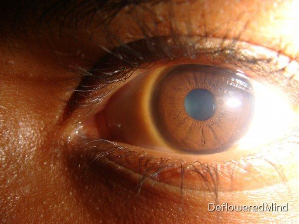 The Eye by DefloweredMind
