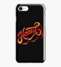 Keep calm n stay Honest iPhone Case/Skin
