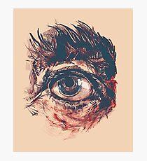 Hairy eyeball is watching you - Rötlich Fotodruck