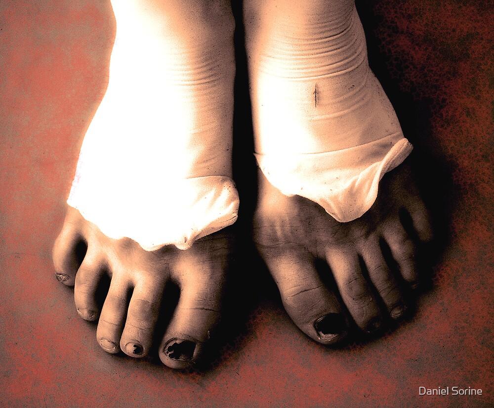 A ballerina's feet by Daniel Sorine