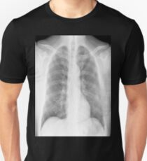 Chest xray Unisex T-Shirt