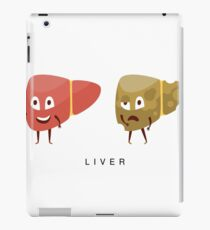 Healthy vs Unhealthy Liver Infographic Illustration iPad Case/Skin