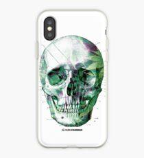 Pot Head iPhone Case