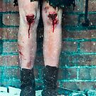 Female knees covered in blood by Sharonroseart