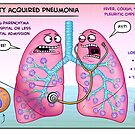 Typical Community Acquired Pneumonia by Medcomic