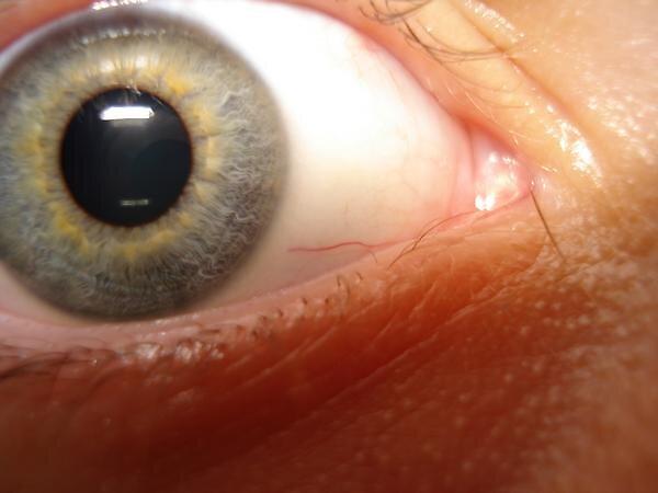 eye by mitchsander