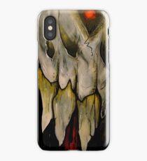 Dental Work iPhone Case/Skin