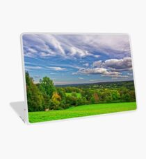 Beautiful English Countryside #2, Redhill, England Laptop Skin