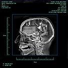 X-Ray Specs by billyboy