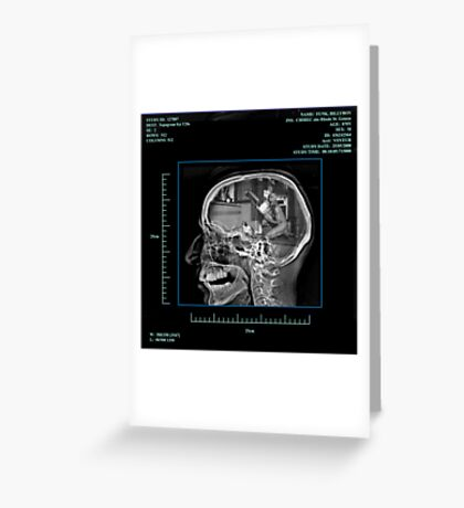 X-Ray Specs Greeting Card