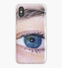 Dew Eye iPhone Case/Skin