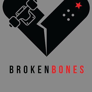 Broken Bones  by SkateWorld